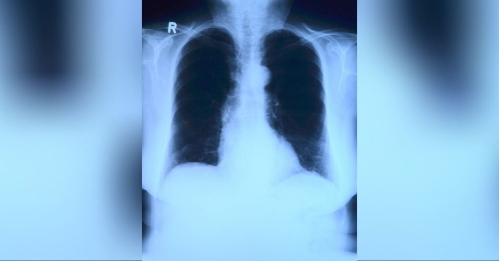 A photo of a lung xray
